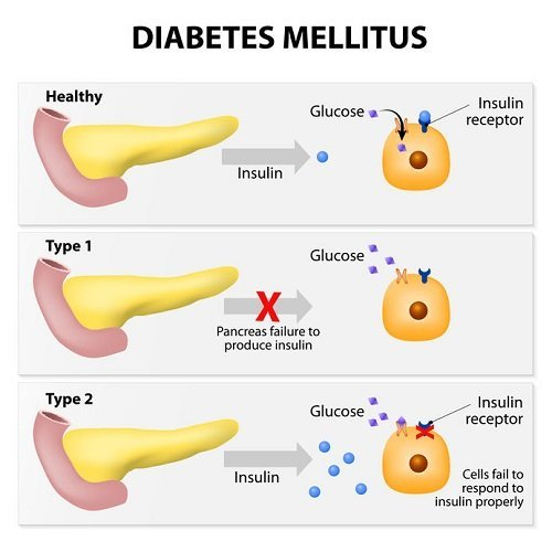 Type 1 vs Type 2 diabetes medications