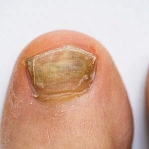 Toenail fungal infection symptoms