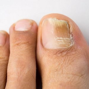 Symptoms of toenail fungus - yellow toenail